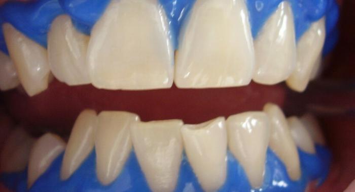 Os 4 Principais Tipos de Clareamentos Dentais que Existem