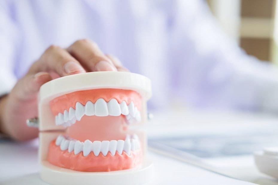 Dentista com especialização estomatologia segurando arcada dentária de plástico