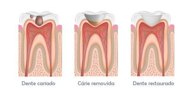 Tratamento odontológico: etapas da restauração de dente