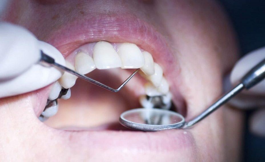 Restauração no dente